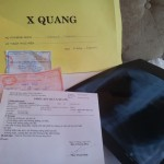 Souvenirer fra mitt første møte med vietnamesisk helsevesen